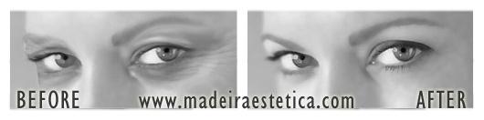 Eyelid Reshaping - Madeira Estetica