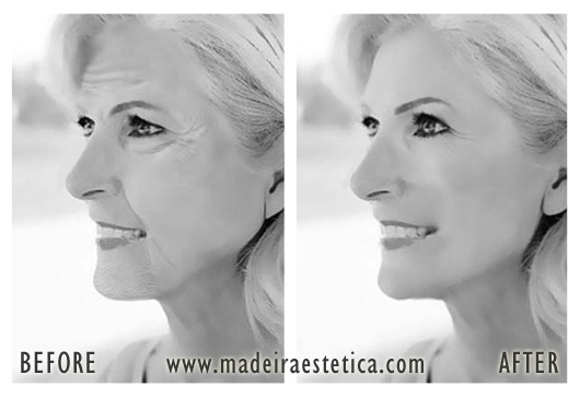 Lifting Facial - Madeira Estetica