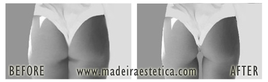Liposuction - Madeira Estetica