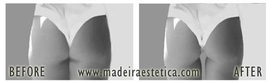 Lipoaspiração / Lipoescultura - Madeira Estetica